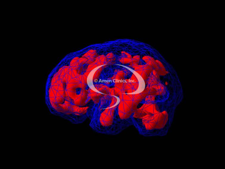 irlen-brain-scan-02